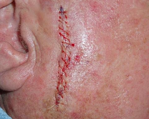 cheek-linear-repair