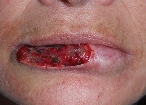 lip-defect