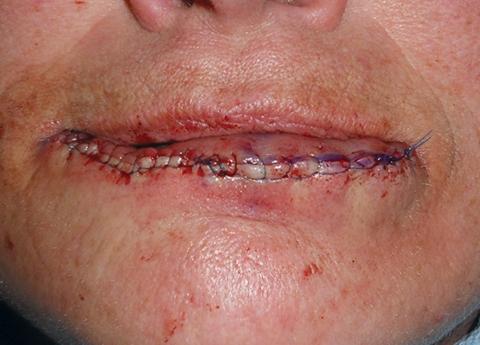 lip-repair