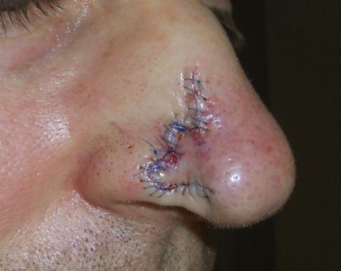 nose-side-repair