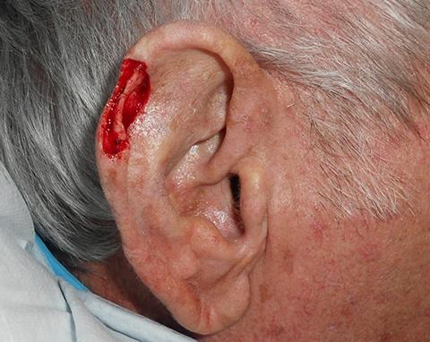 upper-ear-02-defect