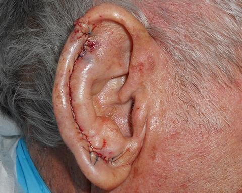 upper-ear-02-repair