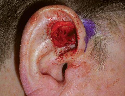 upper-ear-03-defect