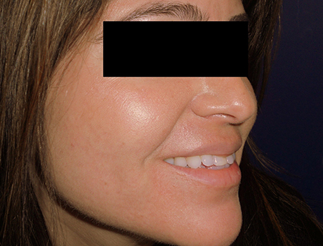 cosmetic-acne-scars-after