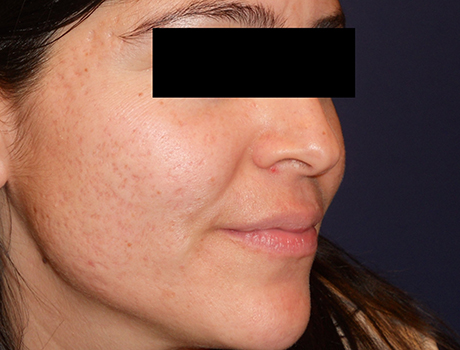 cosmetic-acne-scars-before