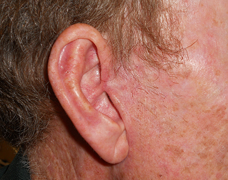 cosmetic-preauricular-after