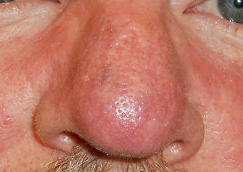 nasal-telangiectasia-after