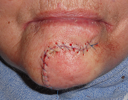reconstruction-chin-sutured