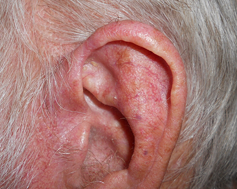 preauricular-02-followup