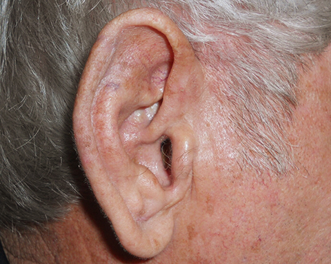 upper-ear-02-followup