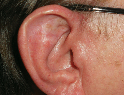 upper-ear-03-followup