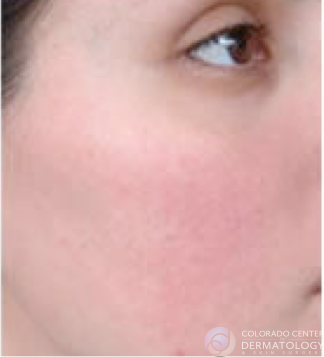 2019.12.26-vbeam-rosacea_after-copy