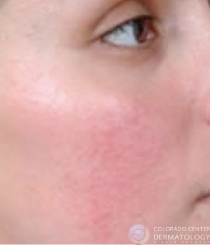 rosacea-before-copy