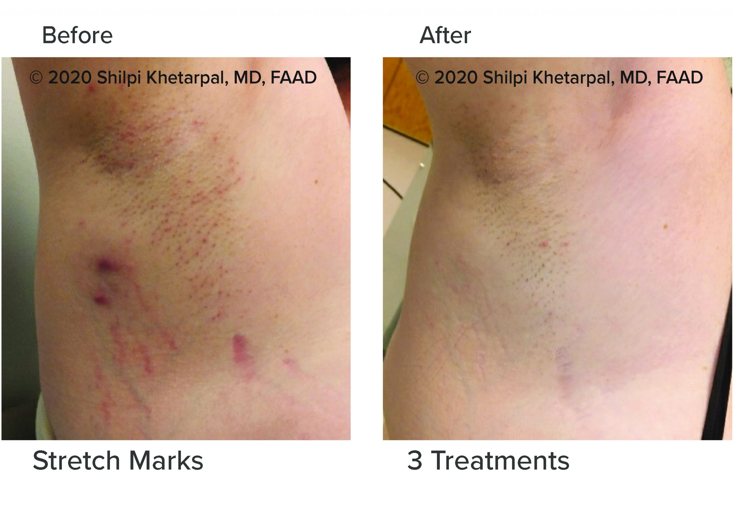 microneedling-results-01