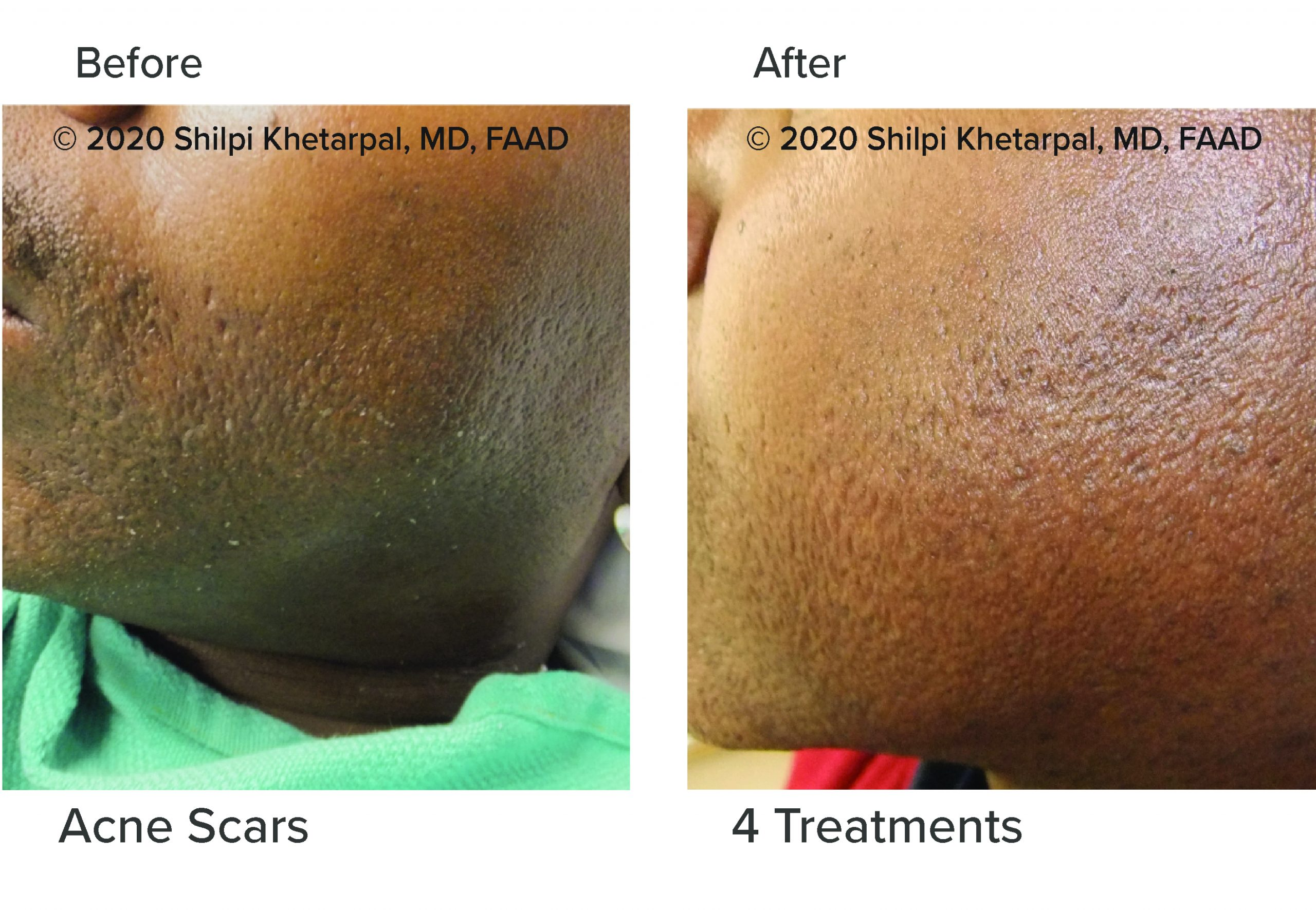 microneedling-results-02