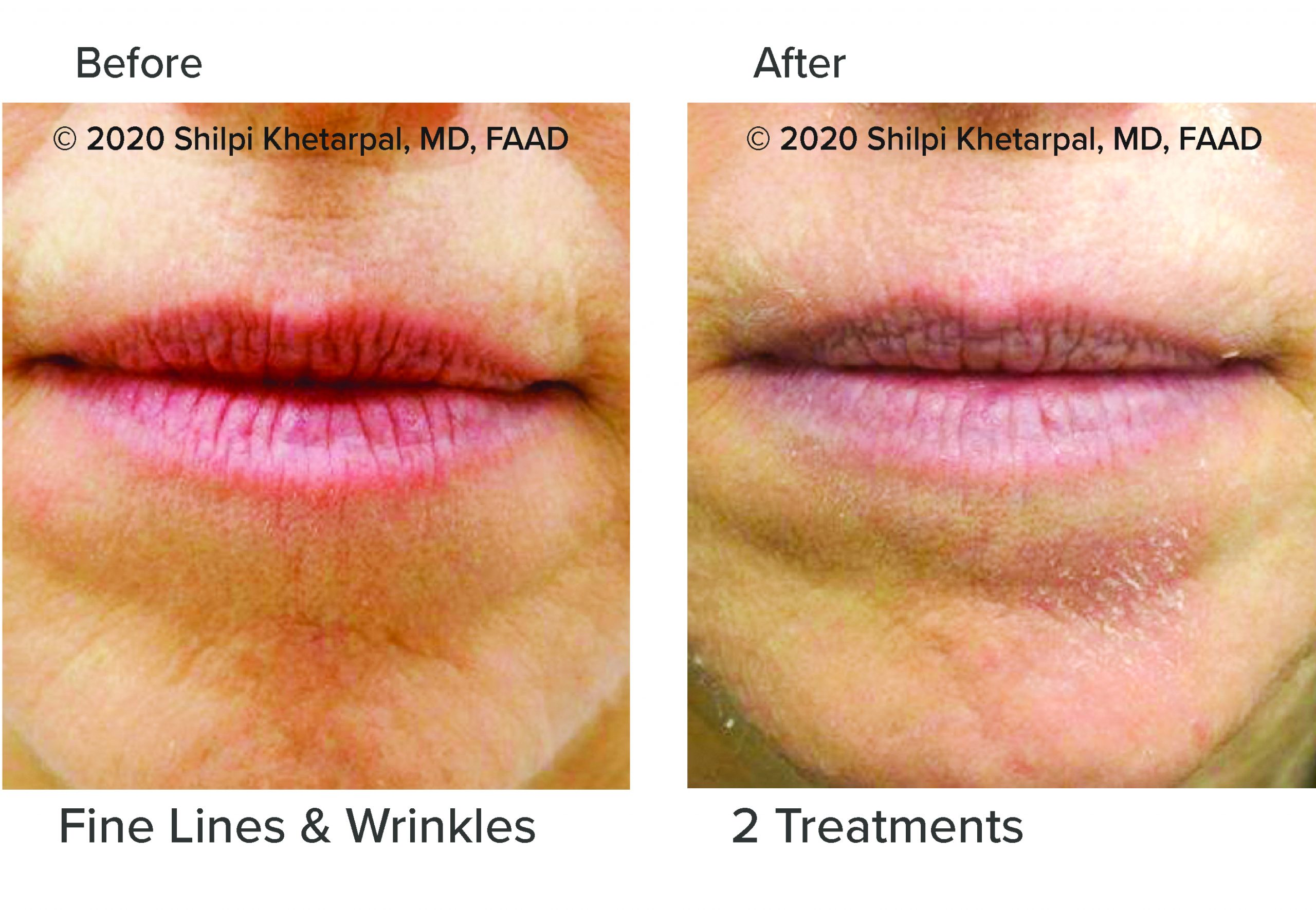 microneedling-results-03