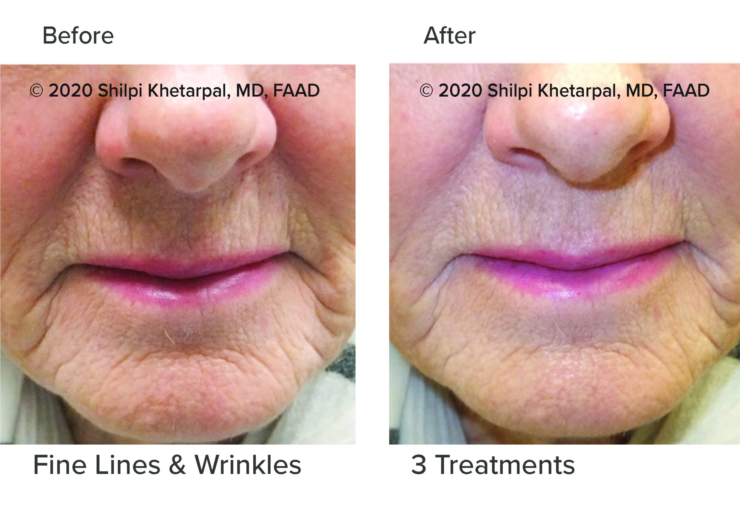 microneedling-results-05
