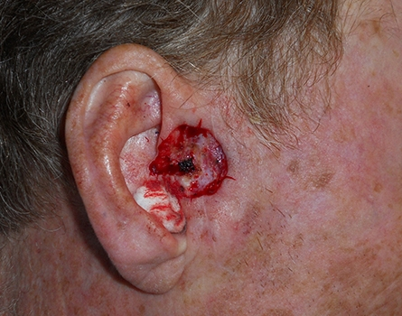 cosmetic-preauricular-defect