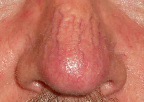 nasal-telangiectasia-before