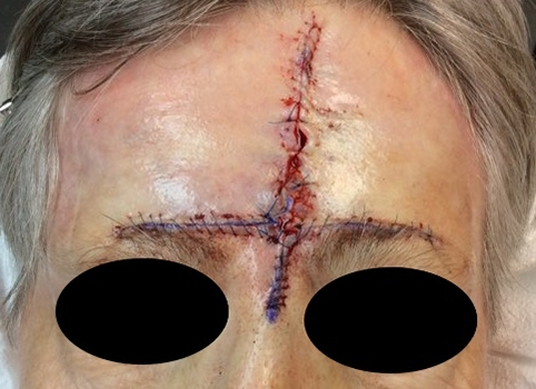 reconstruction-forehead-sutured